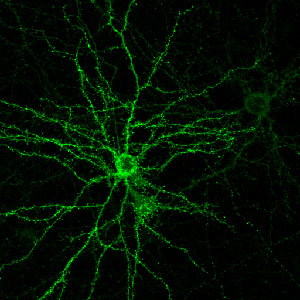 Suppressing NgR1 Returns Brain to Adolescent Levels of Plasticity