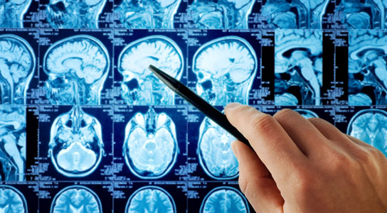 A New Approach for Treating Brain Cancer