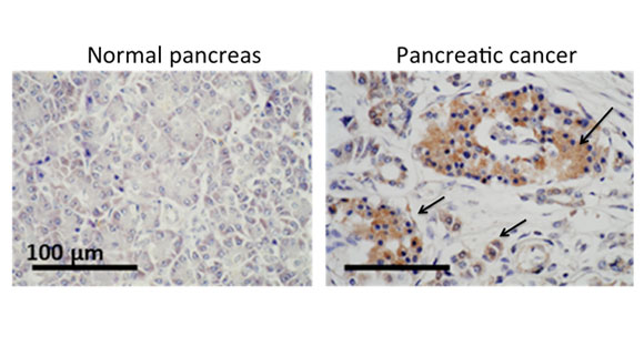 A New Target for Attacking Pancreatic Cancer