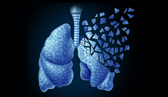 A Real-Time Blood Test for Solid Lung Cancer Tumors