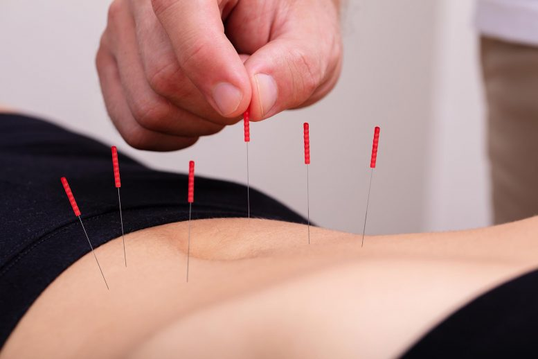 Acupuncture Treatment Belly