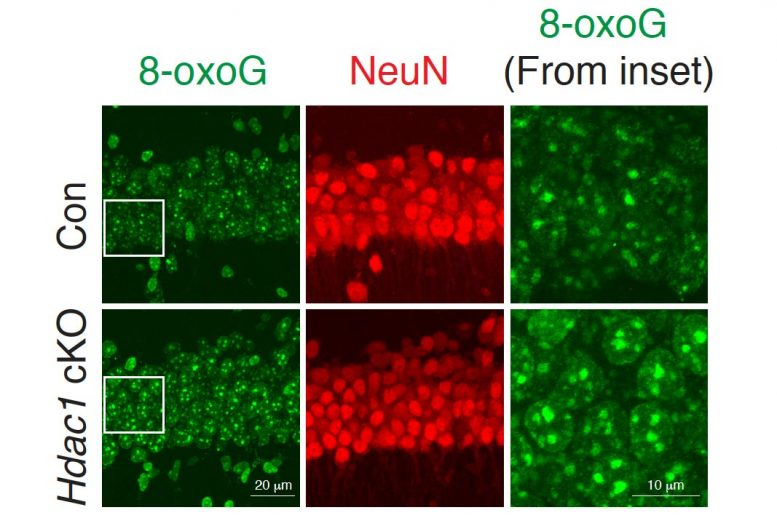 Aging Neurons DNA Damage