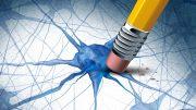Alzheimers Dementia Brain Disease Concept