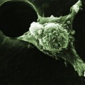 An invasive cancer cell moves with its leading edge
