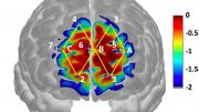 Analyzing Brain Activity to Diagnose and Treat Pain