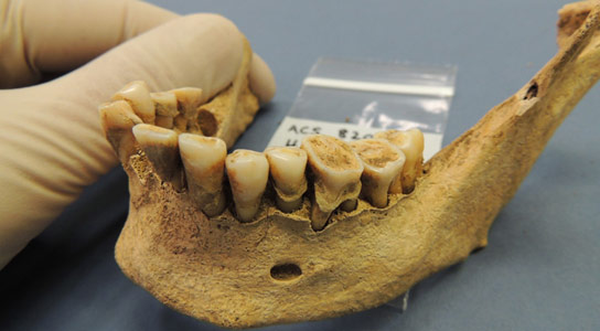 Ancient-teeth-bacteria-record-disease-evolution