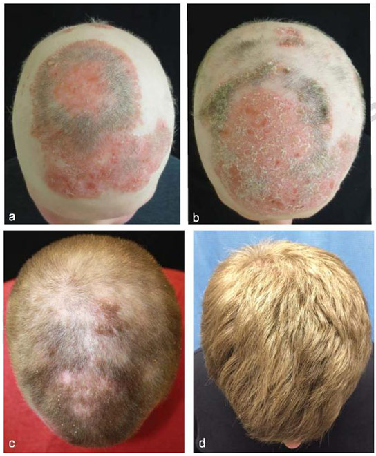 Arthritis Drug Spurs Hair Growth