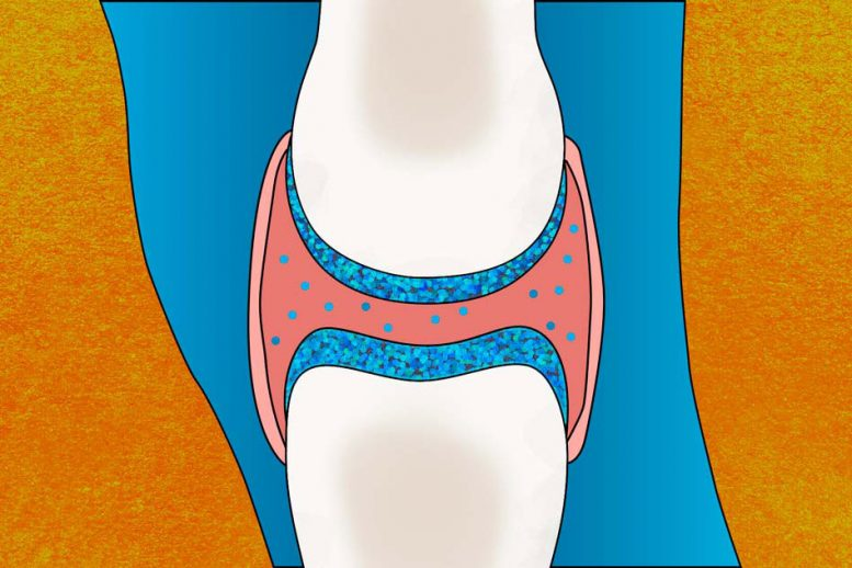 Arthritis Treatment Prevents Cartilage Breakdown