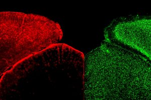 Astrocytes and Neurons Get a New Look