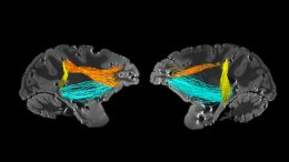 Attentional Control in Brain