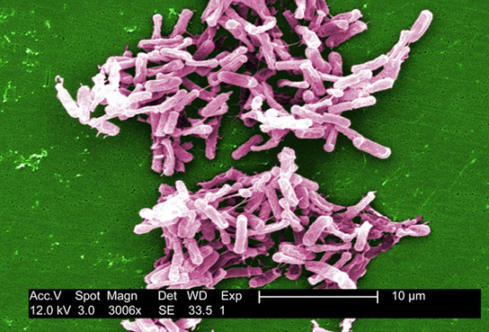 Bacterial Infection Widespread in the United States