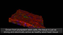 Beating Heart Patch Can Repair the Human Heart
