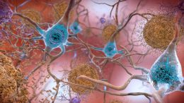 Beta-Amyloid Protein in the Brain Form Plaques