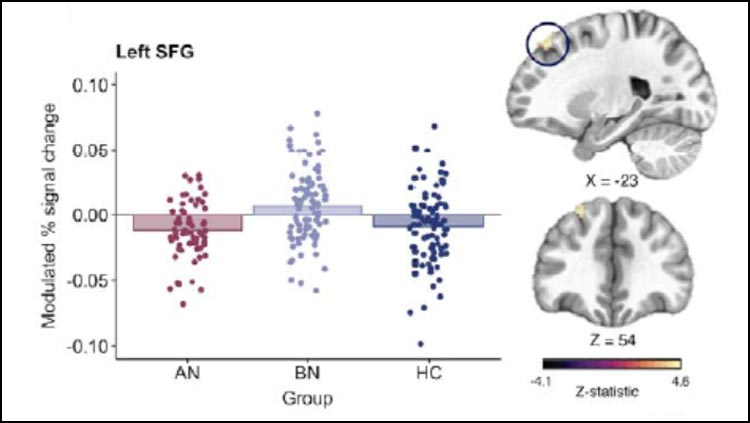 Binge-Eating Is Not Caused by Stress-Induced Impulsivity