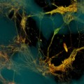 Bioengineers Create Functional 3D Brain Like Tissue