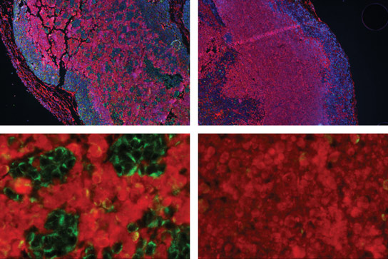 Biologists Identify Brain Tumor Weakness