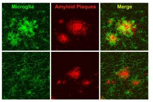Boosting Brain's Immune Cell Function Improves Alzheimer's Symptoms