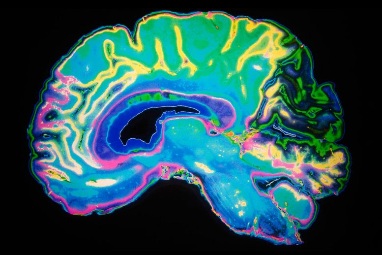 Brain Color MRI Scan