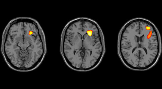 Brain Development During Adolescence in Bipolar Disorder