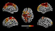 Brain Images Showing Affect of Air Pollution on 12 Year Olds
