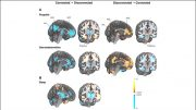 Brain Network Driving Changes in Consciousness