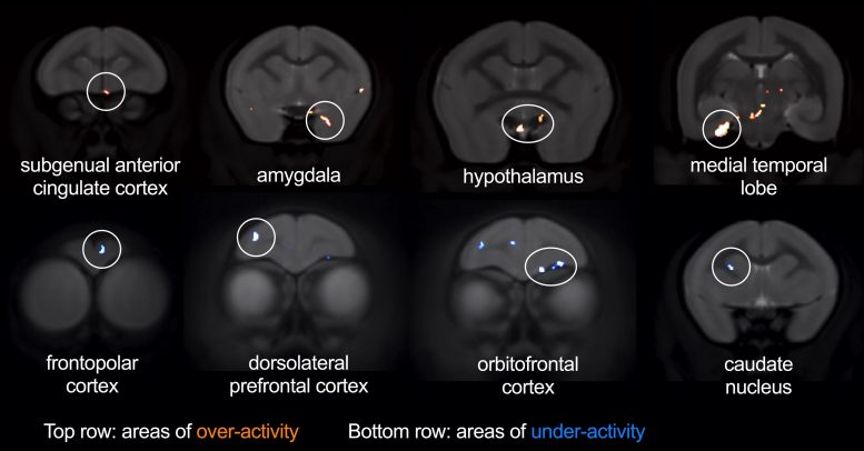Brain Regions Affected by sgACC Over-Activity During Threat