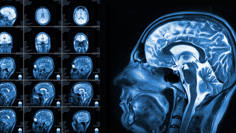 Brain Scan Reveals ADHD as a Collection of Different Disorders