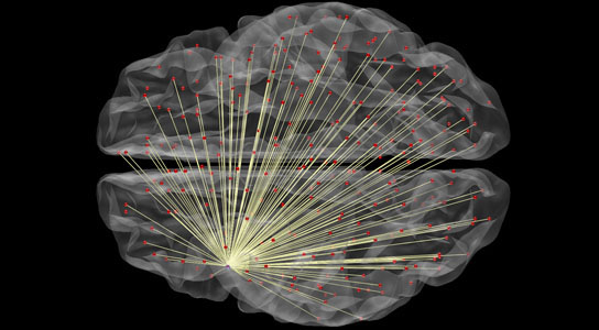 Brain imaging can predict how intelligent you are