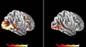 Brain scans could help doctors find treatments for people with social anxiety disorder