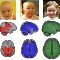 Breastfeeding Improves Brain Development in Infants
