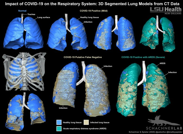 COVID-19 3D Segmented Lung Models