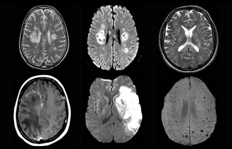 COVID-19 Brain Scans