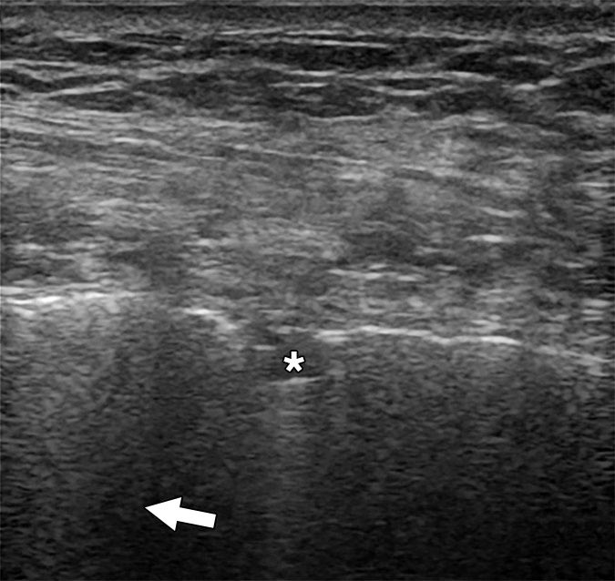 COVID-19 Lung Ultrasound