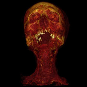 CT Scans Show Atherosclerosis in Ancient Populations