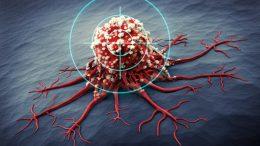Cancer Treatment Concept