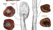 Cancerous and Non cancerous Dinosaur Bone Comparison