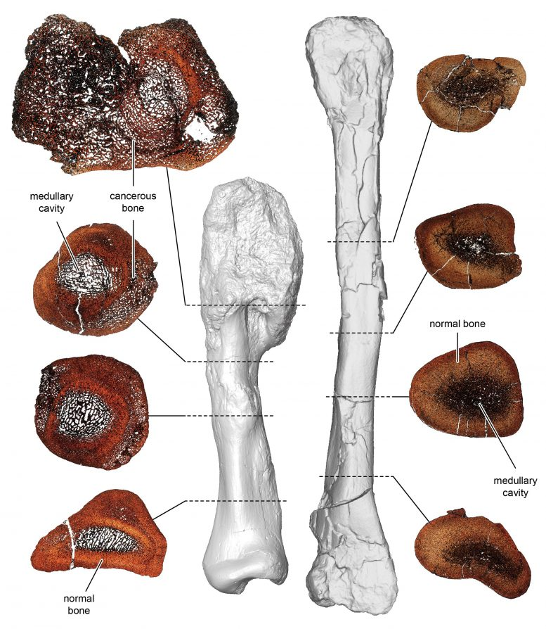 Cancerous and Non-cancerous Dinosaur Bone Comparison
