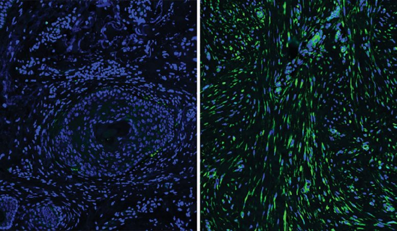 Cells Beneath Skin Explain Differences in Healing