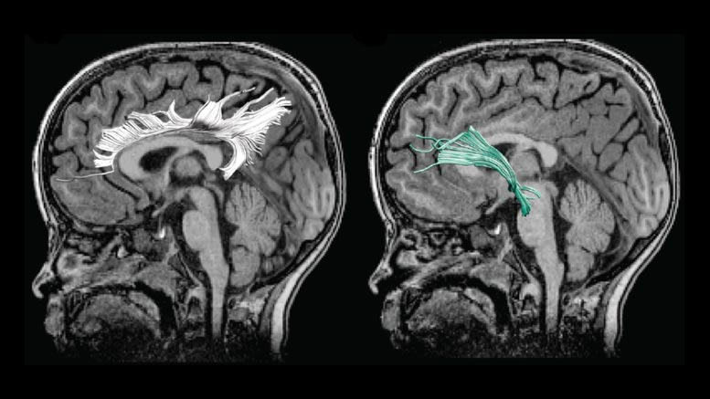 Child's Altered Brain Connectivity