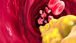 Cholesterol Formation Artery Heart Disease