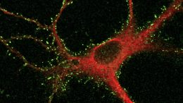 Cortical Neurons After Two-Step Labeling