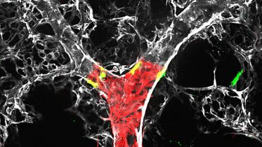 Scientists Gain New Insight Into the Development of Pulmonary Hypertension