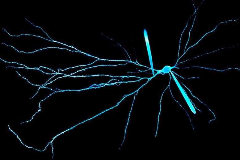 Dendrites Help Explain Our Unique Computing Power