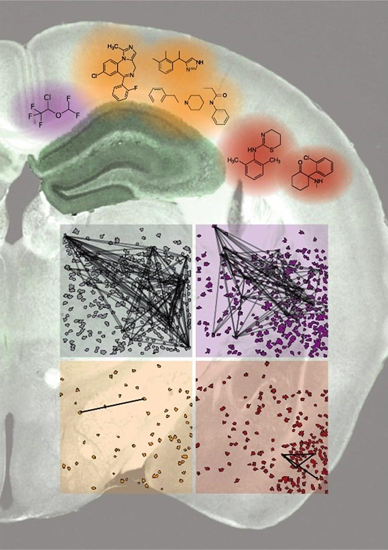 Different General Anesthetics Affect Consciousness and Memory in Different Ways