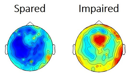 Disruptions of Brain Activity in Absence Seizures
