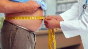 Doctor Measuring Waist Obese Man