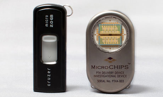 Drug-delivery-microchip