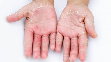 Hand Dermatitis in Two Thirds of Public Due to Frequent Hand Washing During COVID-19