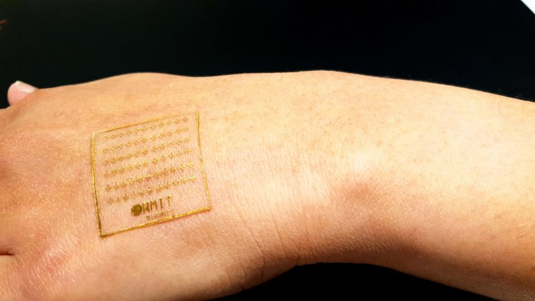 Electronic Skin Device