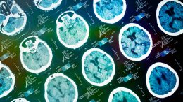 Engineers Are Building Computer Systems to Predict Alzheimer's and Changes in the Brain